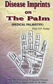 Disease Imprints On The Palm by verma
